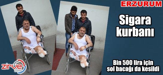 Bin 500 lira için sol bacağı da kesildi