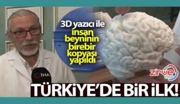 Türkiye'de bir ilk